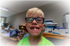 Rowin Laat z'n nieuwe tand zien in de praktijk# Jeroen Hoogakker